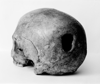M0009393 Edinburgh Skull, trepanning showing hole in back of skull